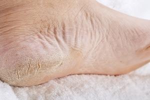 Enlevez la corne des pieds en 4 étapes simples